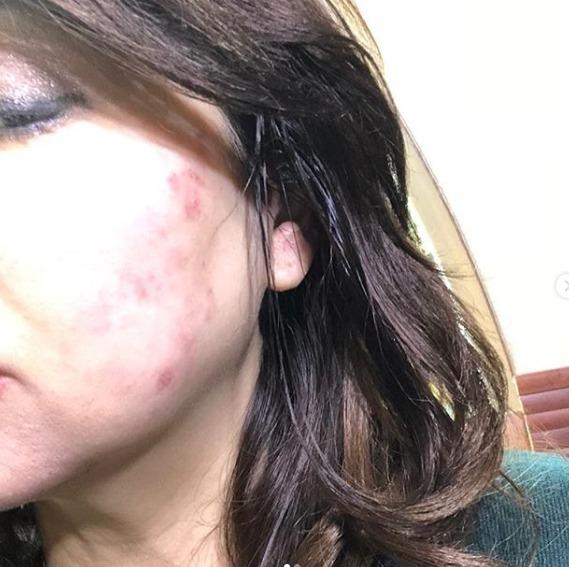 ハイヒールモモコの帯状疱疹は耳にまで?1