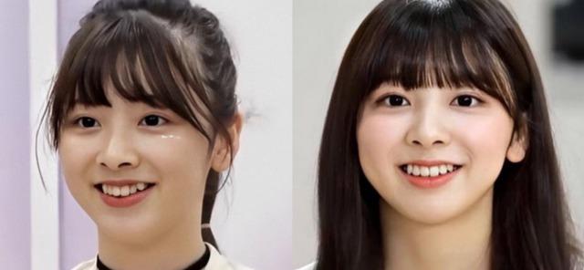 NijiU(ニジユー)メンバーミイヒは歯列矯正を行ったの画像