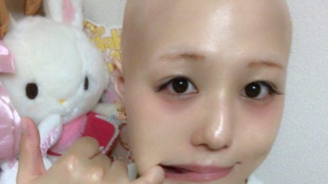 pippi(ピッピ)の病気の名前は「汎発性脱毛症」発症はいつから?原因は不明