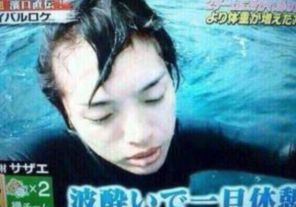 伊野尾慧のおでこが広いのは『ハゲの症状?』という噂もの画像2