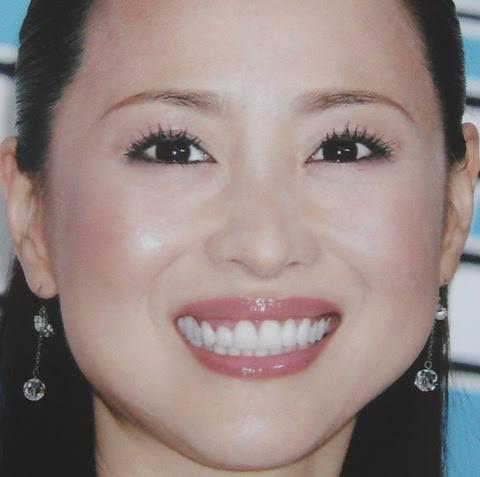 八重歯は矯正で治した?の画像2