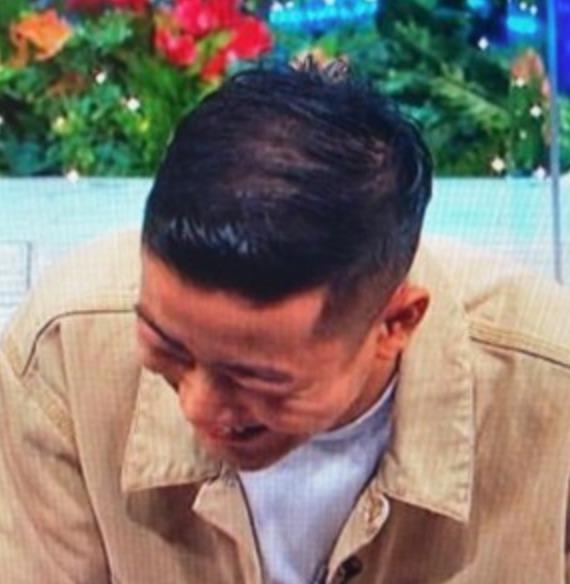 瑛人がハゲてる?『頭頂部の髪が薄い』とSNSで話題に!の画像2