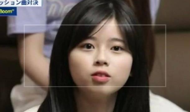 理由③:口元が前に出ているように見える?