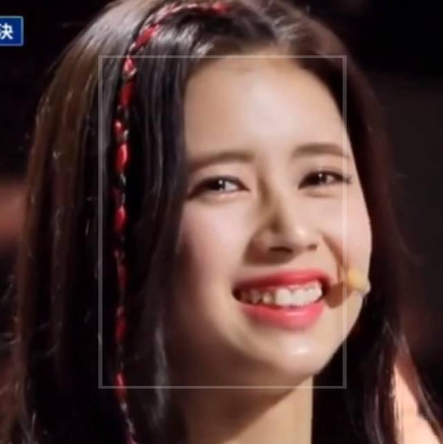 リマの歯並び画像②:韓国合宿の頃